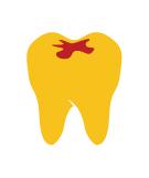 Bạc trám răng